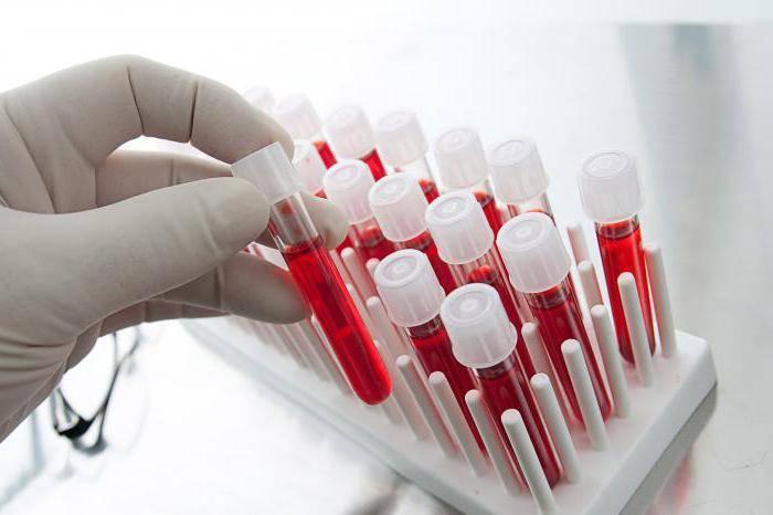 количественный анализ на гепатит с расшифровка