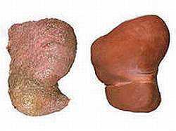 Печень, пораженная гепатитом