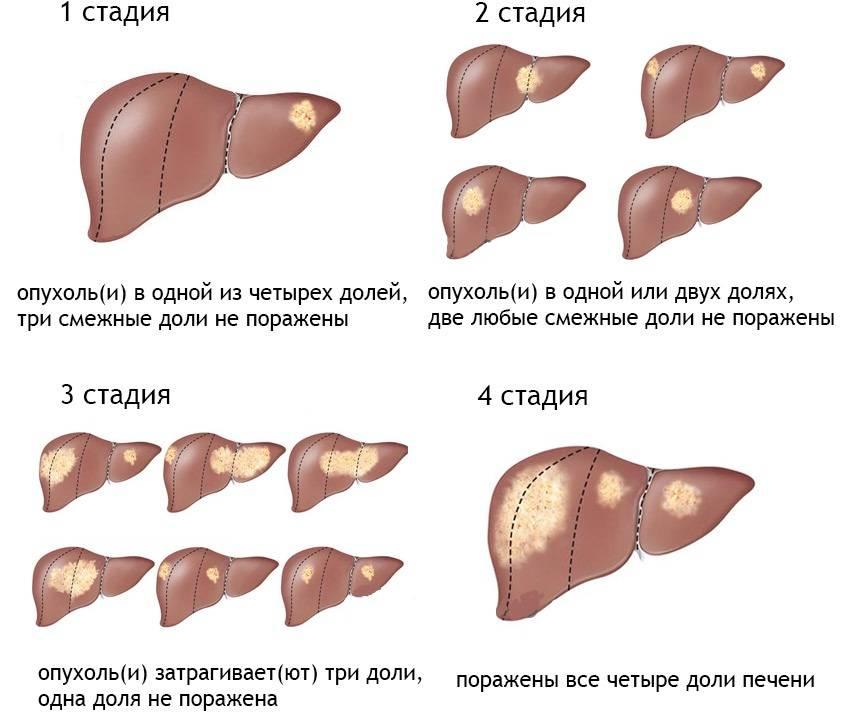 Проявления онкологии печени, можно ли вылечить и классификация