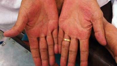руки при болезни печени
