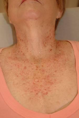 Пятна на коже при печеночных заболевааниях