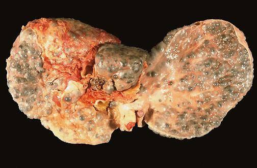 цирроз печени сколько жить