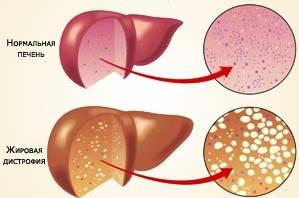 Стеатогепатит, причины виды симптомы и лечение