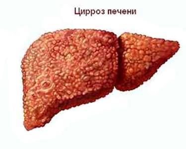 Продолжительность гепатита