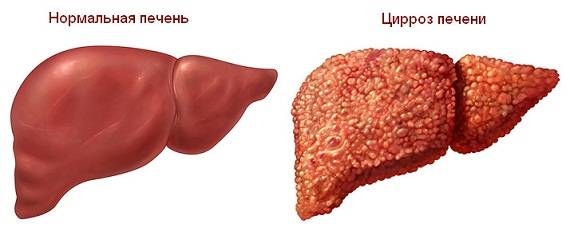 simptomy-cirroza-pecheni