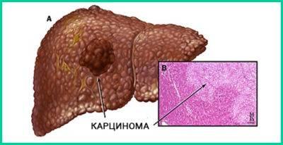 Новообразование, развивающееся из клеток печеночной паренхимы, диагностируют как гепатоцеллюлярную карциному.