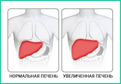 Нижняя грань органа увеличена на 10 см