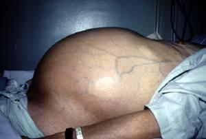 Асцит при заболевании циррозом