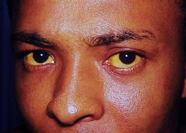симптомы повышенного прямого билирубина