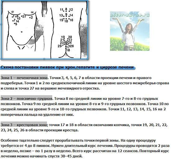 схема постановки пиявок при циррозе и гепатите