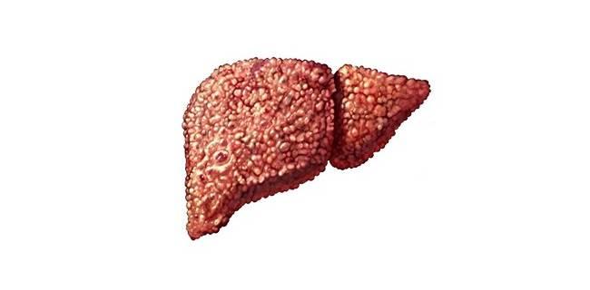 Таблетки от жирового гепатоза