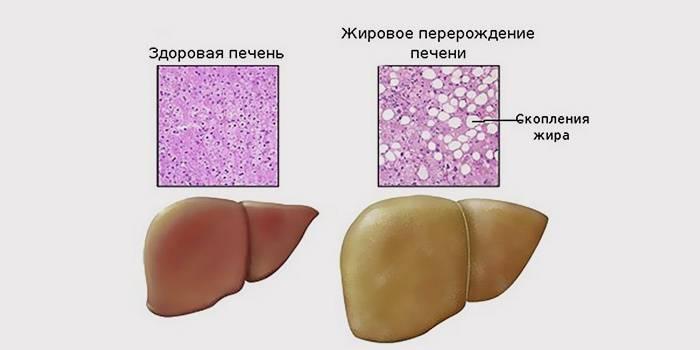 Сравнение жирового гепатоза и здоровой печени