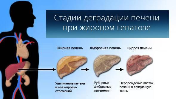 Несколько стадий деградачии печени при жировом гапатозе