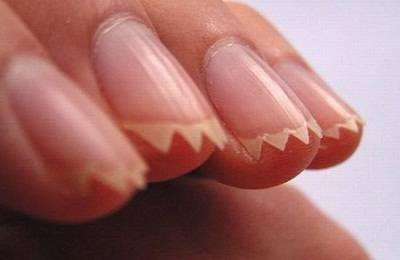 Царапина ногтями