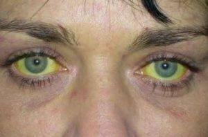 жёлтые склеры у человека