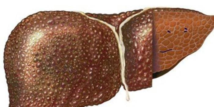 Печень пораженная циррозом