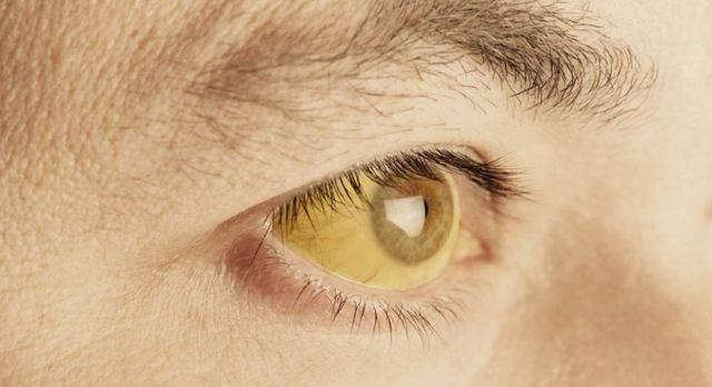 Цвет глаз при заболеваниях печени