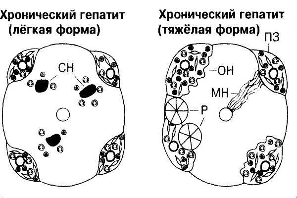 Гепатит б увеличение печени