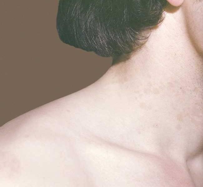 Несколько заболеваний, которые могут привести к появлению красных точек на теле