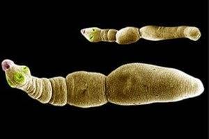 Какие паразиты живут в печени