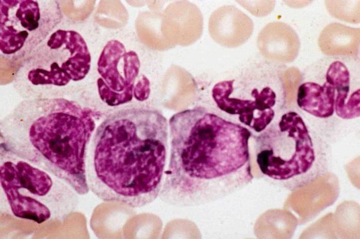 Сдвиг лейкоцитарной формулы детей