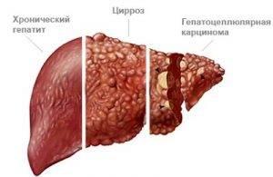 С хроническим гепатитом в берут в мвд