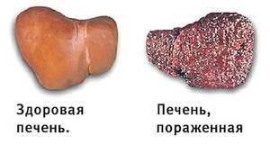 Гепатит С печень