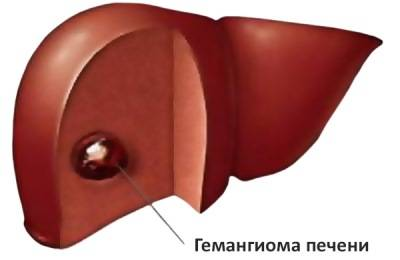Гемангиома органа
