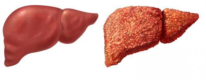 цирроз, фиброз печени
