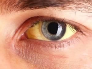 Желтушность склер глаз как признак патологии