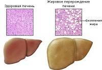 Жировая дистрофия 1 стадии