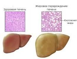 Дистрофия печени симптомы