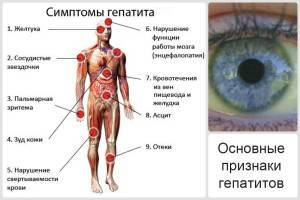 симптомы гепатита С