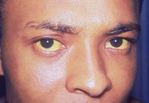 У мужчины желтые глаза