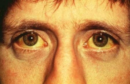 симптомы токсических гепатитов