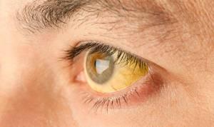 желтушность белков глаз при гепатите