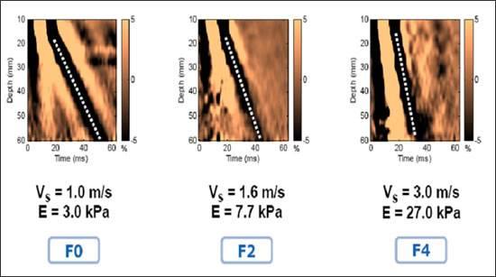 Результаты фибросканирования печени - эластометрия или эластография показывает - F0 здоровая печень, F2 фиброз, F4 цирроз печени