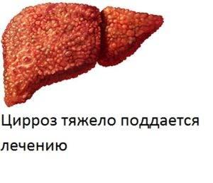 vosstanovlenie-pecheni-posle-alkogolya