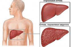 Пример здоровой и поврежденной печени
