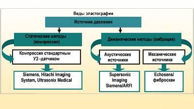 Схема видов эластографии