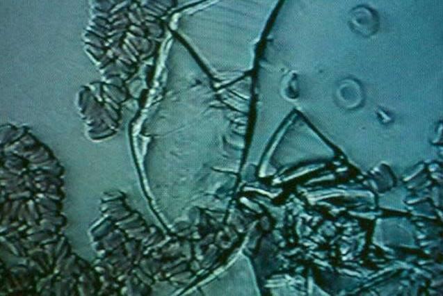 Гиперэхогенная желчь в желчном пузыре