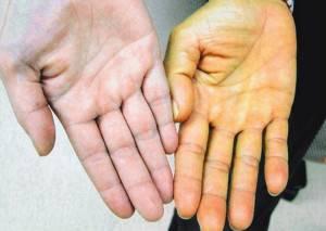 Синдром жильбера какой при нем билирубин