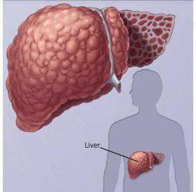 асцит при циррозе печени сколько живут