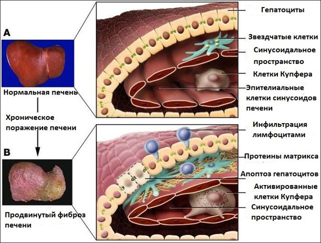 Что такое фиброз печени?