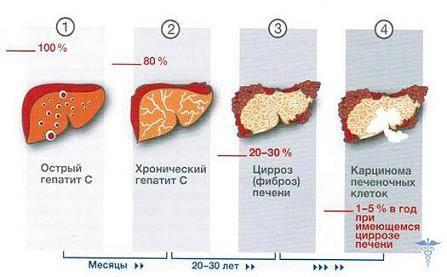 Гепатит С прогноз