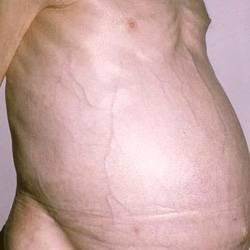 Смертность при циррозе печени