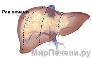 Как выглядит рак печени?