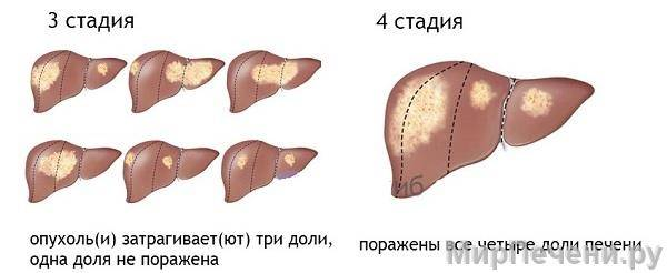3-4 стадии рака печени