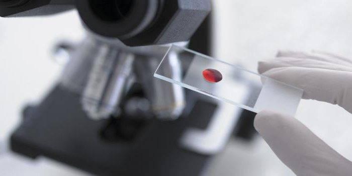 маркеры гепатита с расшифровка анализов