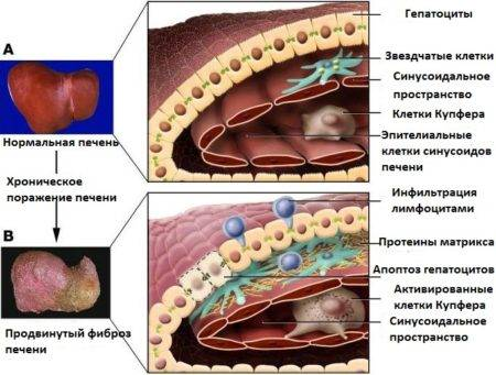 Картина фиброза
